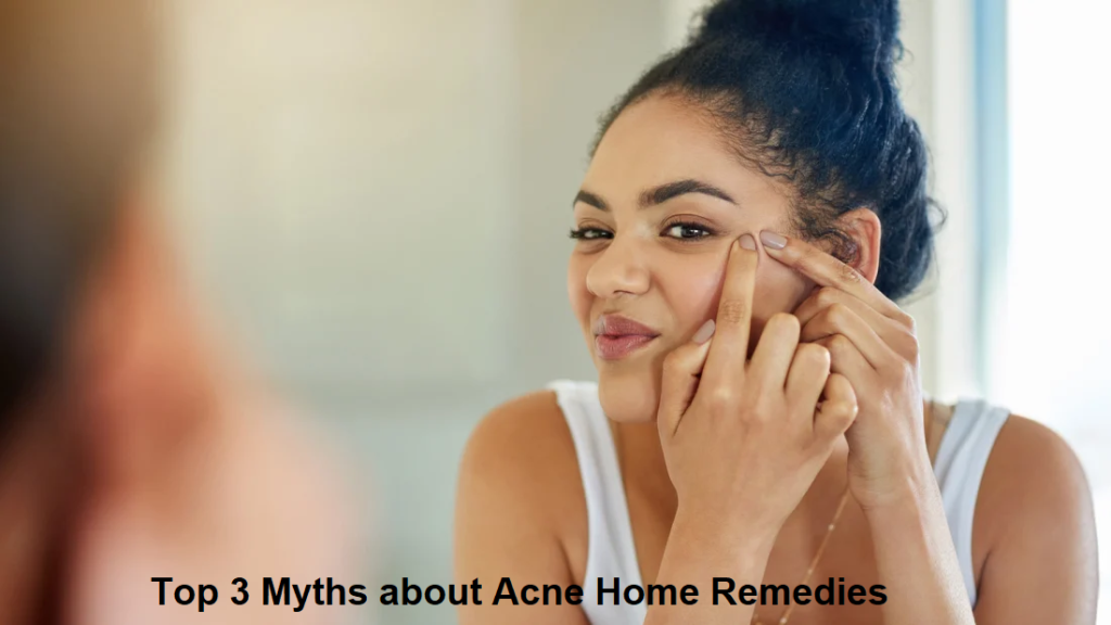 Top 3 Myths about Acne Home Remedies